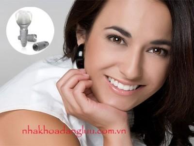 Tại sao mất răng nên cấy ghép implant?